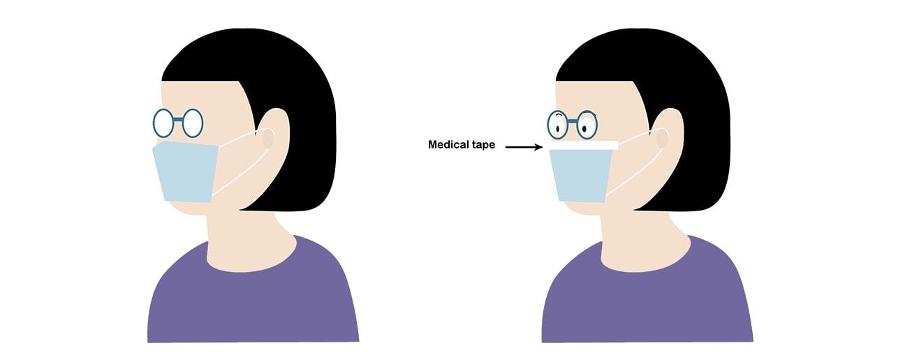 Medical Tape For Mask To Prevent Glasses From Fogging